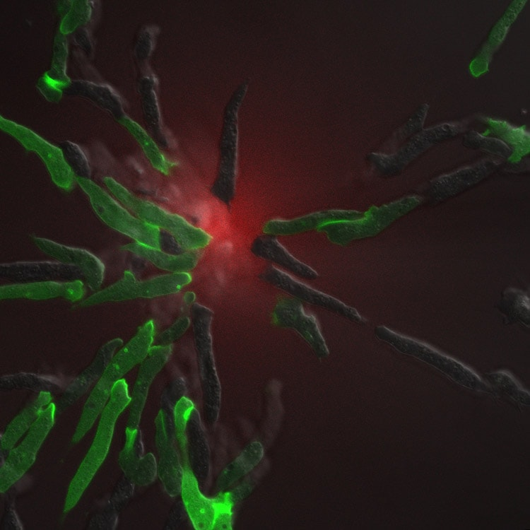 Confocal / DIC overlay image of a group of Dictyostelium cells chemotaxing towards a source of chemoattractant in the center of the field.